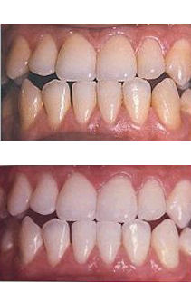photos before & after - laser teeth whitening treatments