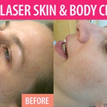 A first-hand experience with treatment for cystic acne
