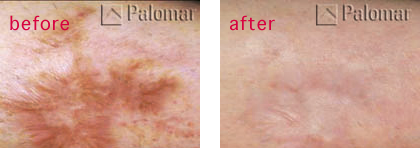 Vancouver scar revision stretch mark removal pure light laser scar revision treatments vancouver bc sciox Choice Image