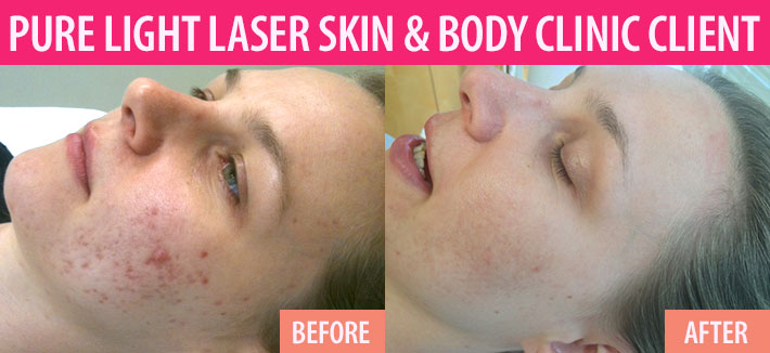 Before and after of laser acne treatments in Vancouver at Pure Light Laser